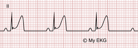 Electrocardiogram of Early Repolarization Pattern
