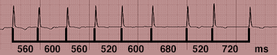 Rythme Cardiaque irrégulier