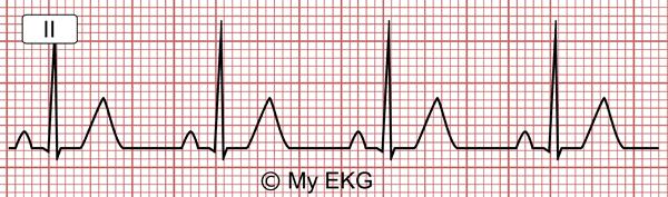 Rythme sinusal normal sur un électrocardiogramme