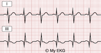 S1Q3T3 pattern in EKG of Pulmonary Embolism