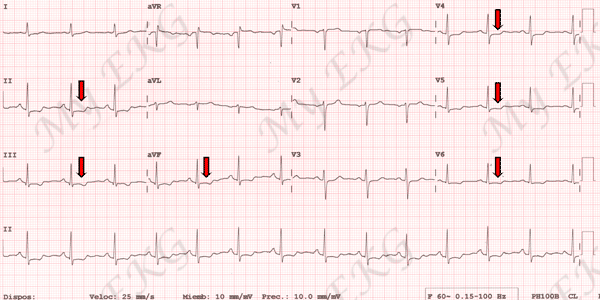 Electrocardiogram of Non-ST-Elevation Acute Coronary Syndrome, NSTE-ACS