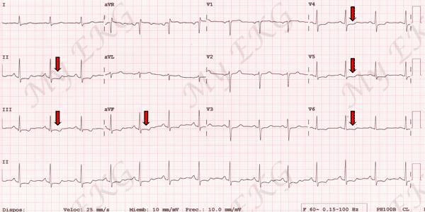 syndrome coronarien aigu sans sus-décalage du segment ST, SCA ST-