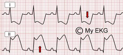Elévation du segment ST avec une dépression réciproque du segment ST