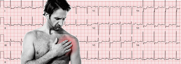 Acute Coronary Syndrome on the Electrocardiogram