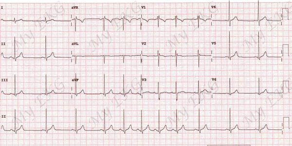Eletrocardiograma da Arritmia Sinusal Respiratória