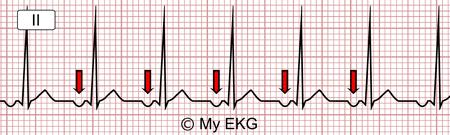 Électrocardiogramme d'une Tachycardie auriculaire