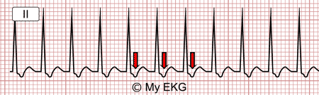 Eletrocardiograma de taquicardia por reentrada nodal incomum