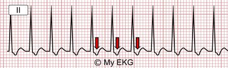 Uncommon Nodal AV Reentrant Tachycardia Electrocardiogram