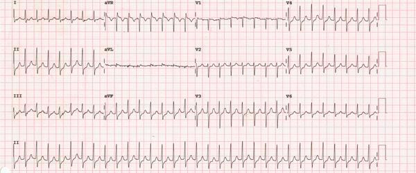 Elettrocardiogramma di tachicardia da rientro nodale