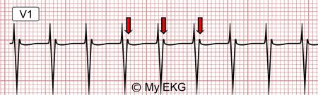 Eletrocardiograma de taquicardia por reentrada nodal comum