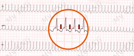 Electrocardiogram of Orthodromic Atrioventricular Reentry Tachycardia