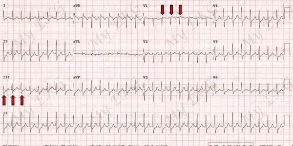 Electrocardiogram of Typical Atrioventricular nodal reentrant tachycardia