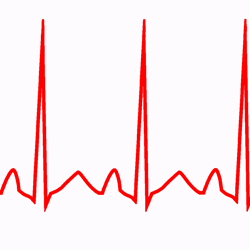 Inappropriate Sinus Tachycardia