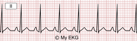Électrocardiogramme de Tachycardie sinusale inappropriée