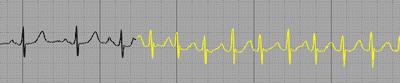 Atrioventricular Nodal Reentrant Tachycardia, AVNRT