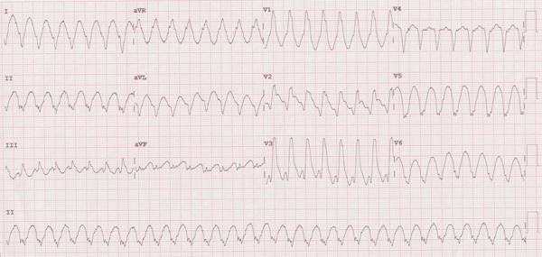 Monomorphic Ventricular Tachycardia Electrocardiogram
