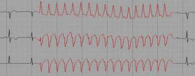 Non-Sustained monomorphic Ventricular Tachycardia