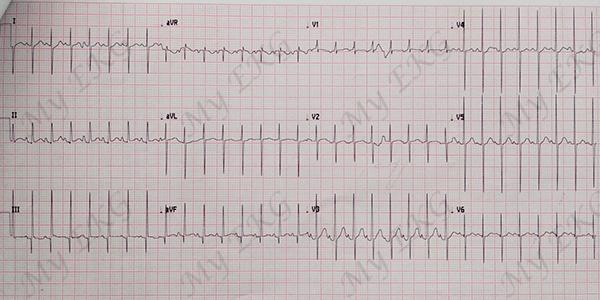 Electrocardiogram of the Tetralogy of Fallot