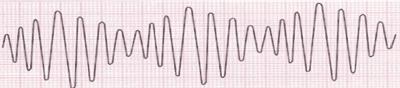 Electrocardiograma de Torsades de Pointes