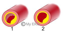 Tipos de Síndrome Coronária Aguda