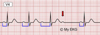 Second degree Atrioventricular Block, type I, Wenckebach