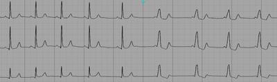 Différents degrés de pré-excitation dans le Wolff-Parkinson-White